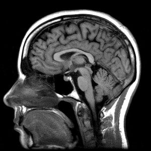_xray-like image of the human head from profile view_